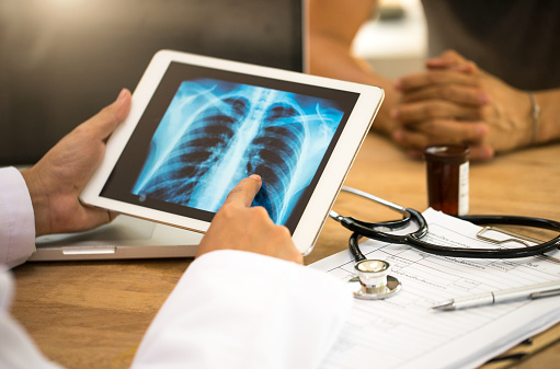 A doctor looks at x-rays on a tablet